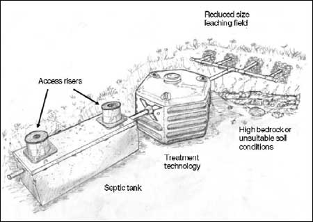 Waste Water Treatment 101 Septic Tank Sales System
